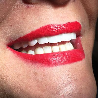 Nueva Sonrisa Lumineers. Clínica Dental Doctor Alcubierre